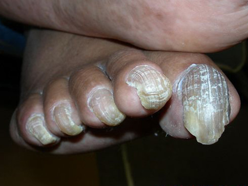 Livermore Podiatry - Conditions : Nail Problems
