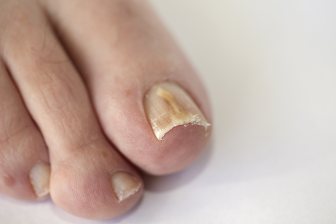 Livermore Podiatry - Conditions : Toenail Fungus